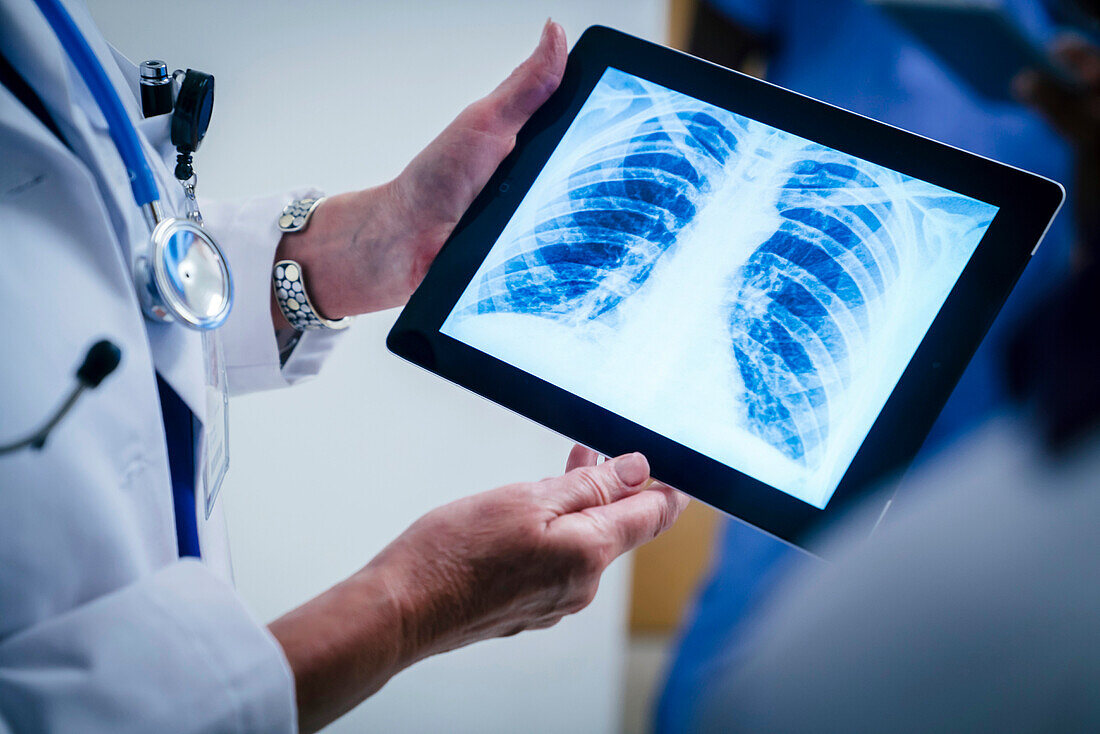 Doctors examining x-ray of chest and ribs on digital tablet