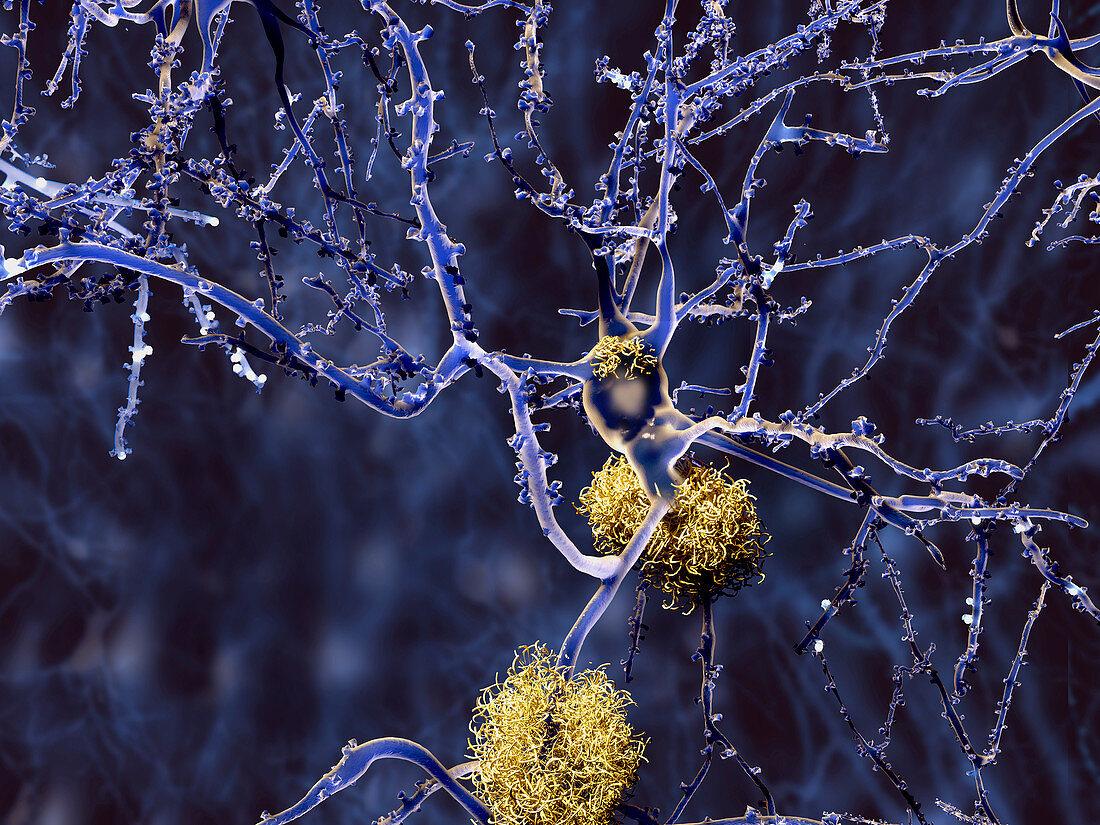 Alzheimer's disease,illustration