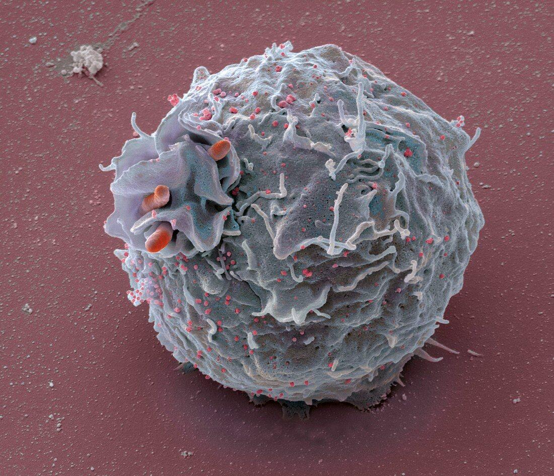 Macrophage engulfing bacteria, SEM