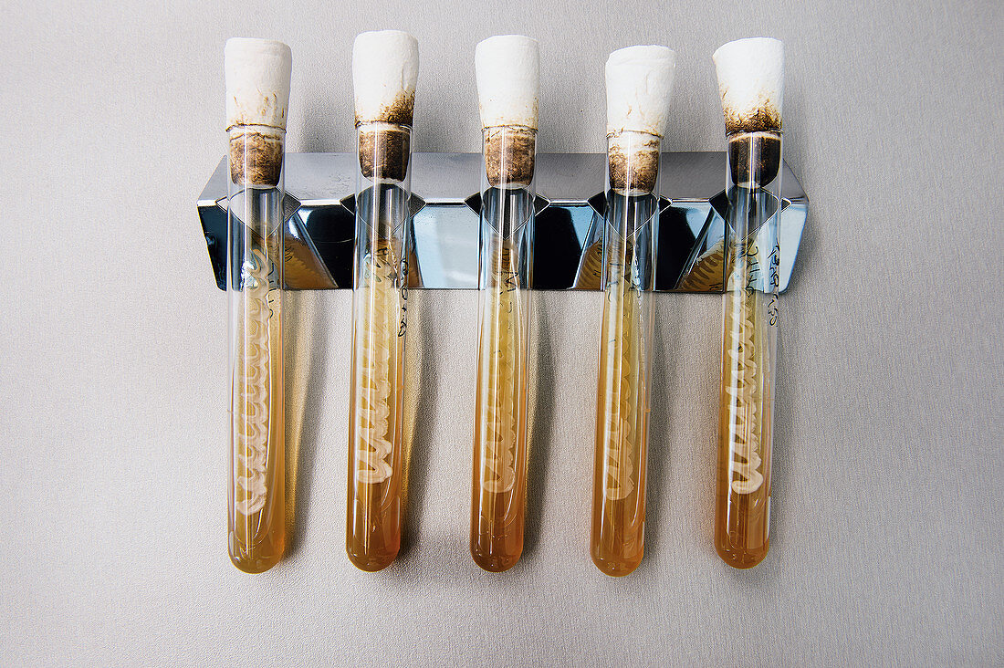 Differences between bottom-fermented and top-fermented yeast