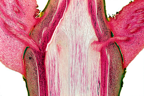 Leaf stem node,light micrograph