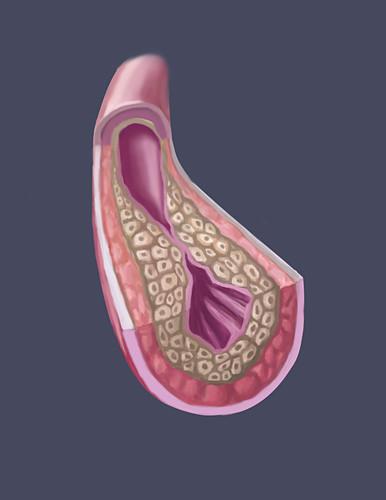 Clogged Artery,illustration