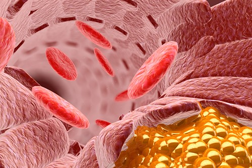 Cholesterol and blood cells,illustration