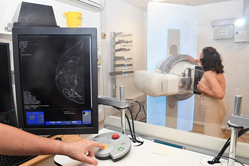 Mammography for breast cancer surgery