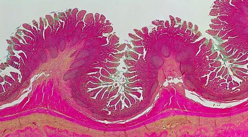 Human small intestine, light micrograph