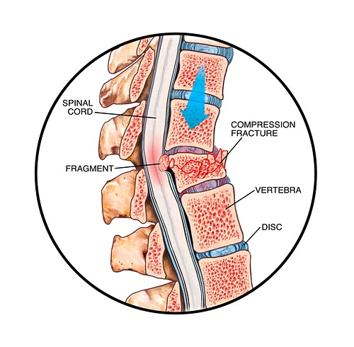 Spinal compression fracture