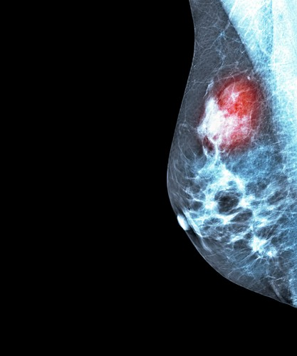 Breast cancer,X-ray