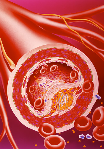 Narrowed artery due to cholesterol