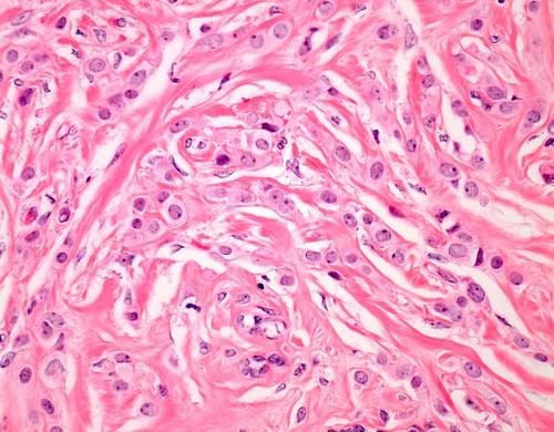 Invasive lobular breast cancer, light micrograph