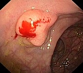 Polyp in the rectum