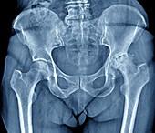 Osteoarthritis of the hip,X-ray