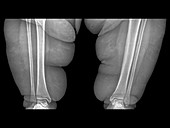 Obese person's leg,X-ray
