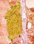 Coxsackie B3 virus particles,TEM