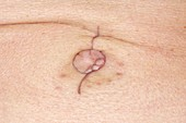 Navel scar