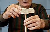 Alzheimer's patient tests hand dexterity