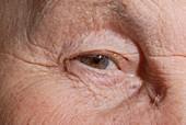 Elderly person's eye