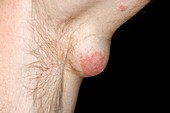 Epidermal cyst under the arm