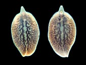 Liver flukes,macro photograph