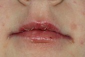 Cracked peeling lips after viral infectio