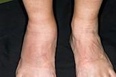 Psoriatic arthritis of the ankle