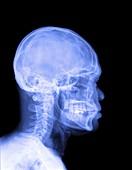 Human head,X-ray