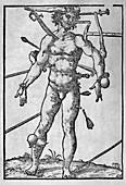 Combat injuries,16th century