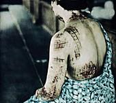Radiation burns,Hiroshima,1945