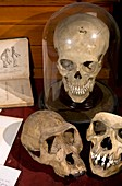 1863 Huxley Man's Place in Nature skulls