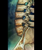 Fusion of spinal bones,X-ray