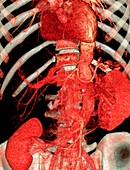 Aortic artery prosthesis,3D CT scan
