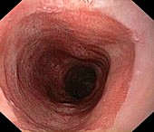 Barrett's oesophagus due to reflux