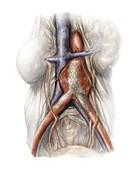 Abdominal aortic aneurysm,artwork