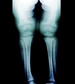 Childhood rickets,X-ray