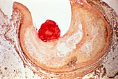 Atherosclerosis,light micrograph