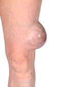 Cancer of the knee