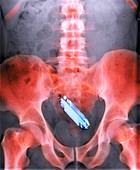 Mobile phone in a person's rectum,X-ray