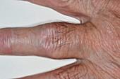 Rheumatoid arthritis of the finger