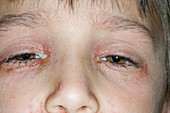Bacterial conjunctivitis of the eyes