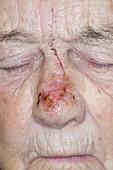 Skin cancer surgical scar