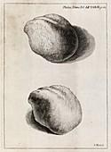 Kidney stone,18th century