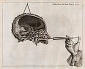 Eustachian tube syringing,18th century