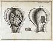 Fungal bladder infection,18th century