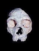 Neanderthal skull (Gibraltar 1)