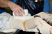 Congenital hip dislocation surgery