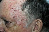 Solar keratosis on the forehead