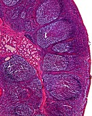 Tonsil tissue,light micrograph