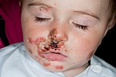 Impetigo skin infection in an infant