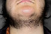 Female hirsuitism (hairiness)