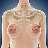 Breast cancer,artwork