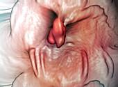 Intestinal polyp,virtual colonoscopy